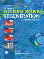 20 Years of Guided Bone Regeneration in Implant Dentistry - Second Edition