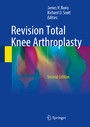 Revision Total Knee Arthroplasty